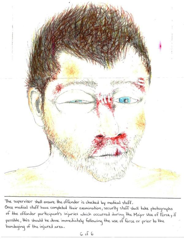 Prisoner Describes His Torture Through Art